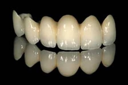 keramicheskie-zubnie-mosti